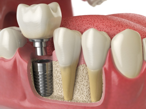 What Do You Know About Dental Implants?